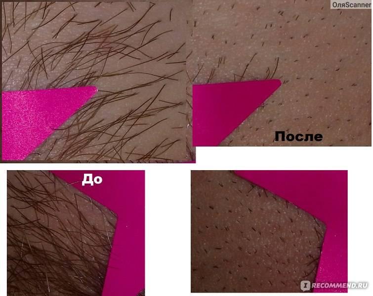 Правила бритья паховой зоны станком для девушки: без порезов и раздражения