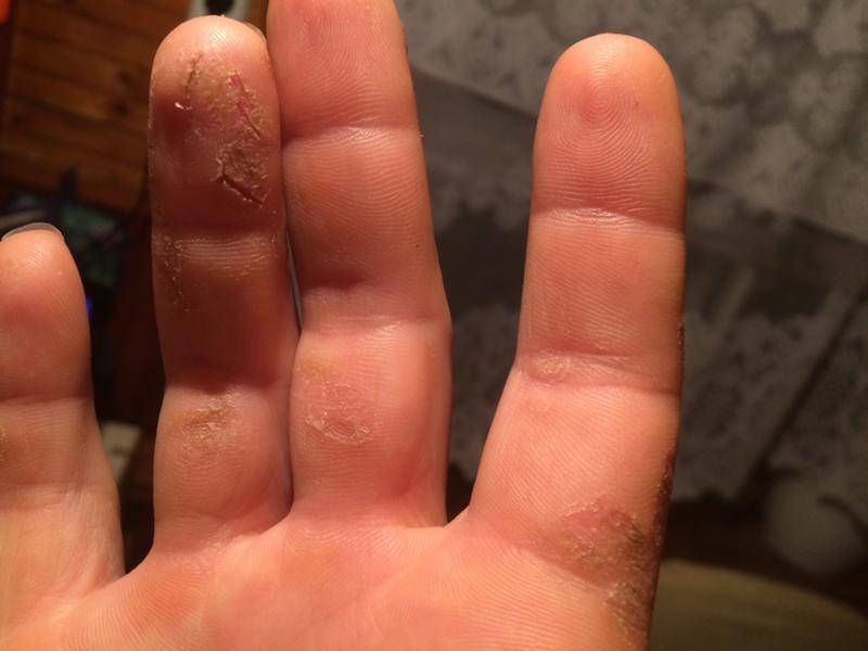 Покраснение и сухость на руках, трещины, шелушение кожи, жжение, зуд. причины и лечение