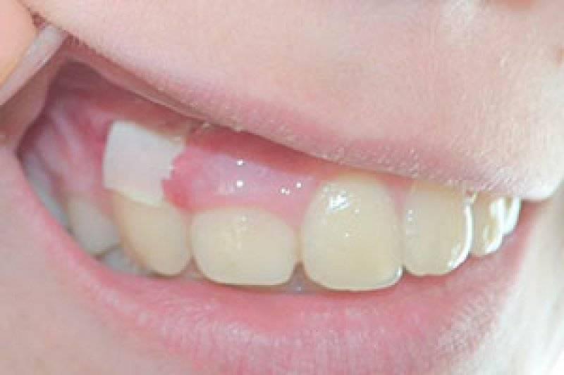 Дренаже в десне после удаления зуба — особенности и осложнения