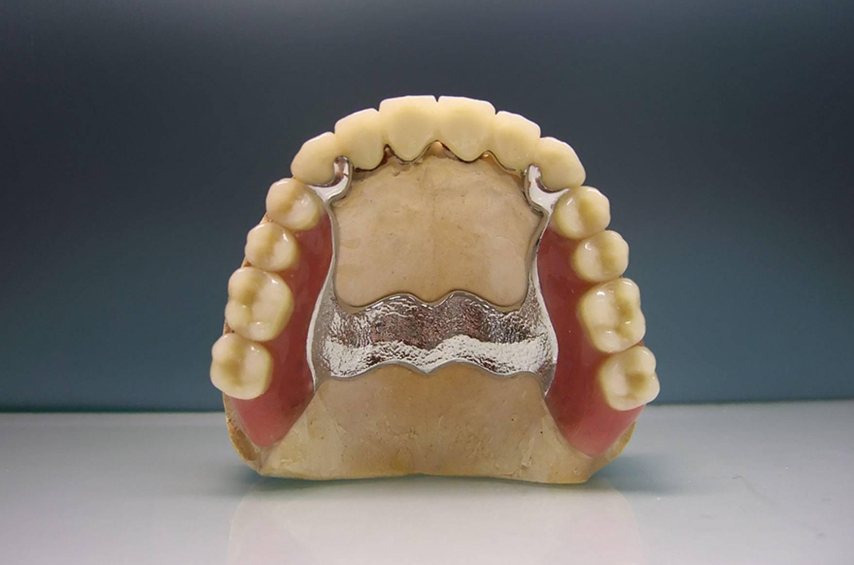 Нейлоновые зубные протезы: отзывы пациентов и стоматологов