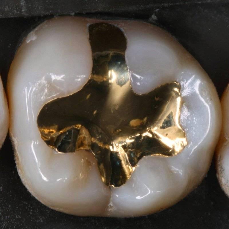 Почему могут крошиться зубы и что делать, чтобы это остановить