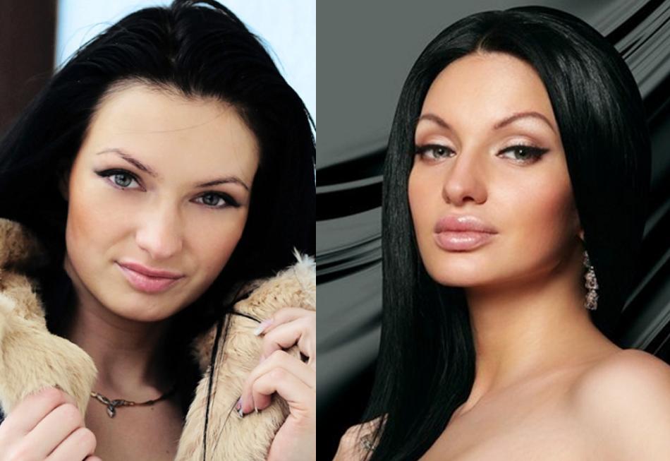 евгения гусева до и после ринопластики фото