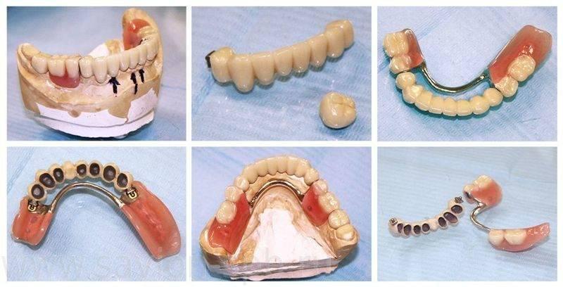 Правильный выбор хороших зубных протезов