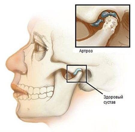 Причины возникновения воспаления челюстного сустава, методы лечения и симптомы, диагностика и осложнения