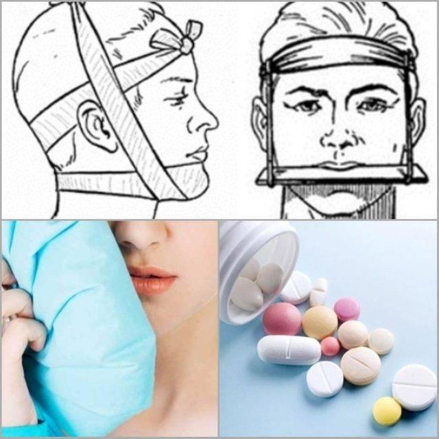 Перелом нижней челюсти - симптомы  и лечение