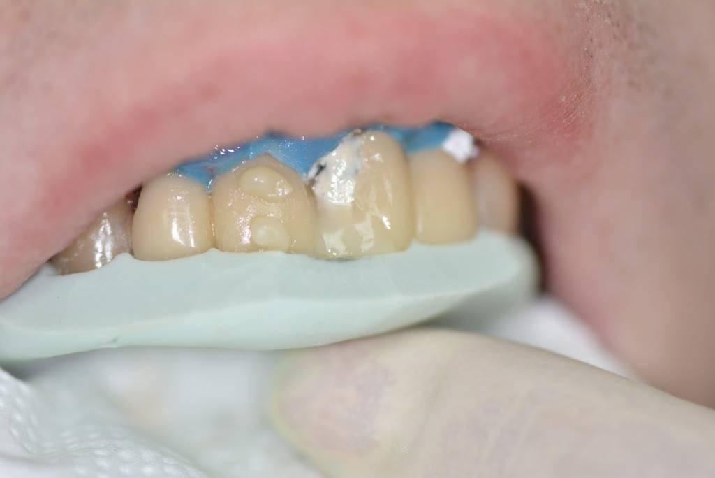 Сломался передний зуб, что делать? восстановить сломанный передний зуб реально!