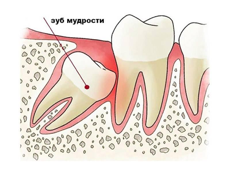 Было сложное удаление зуба сколько будет болеть десна