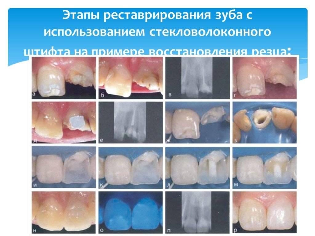 Почему после установки штифта болит зуб