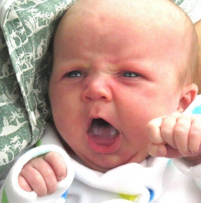 Лечение молочницы во рту у грудничка