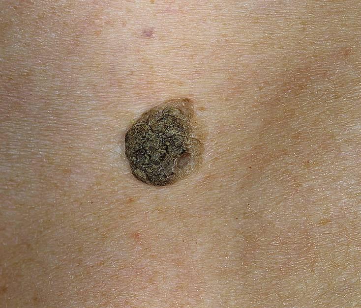 Опухоли кожи: каких новообразований следует опасаться