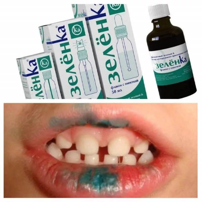 Можно ли лечить герпес зубной пастой?