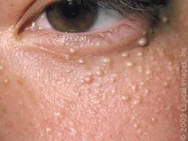 Стряхни просо с лица! как избавиться от белых точек(милиумов) на коже