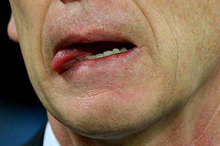 Лекарство от заеды в уголках рта