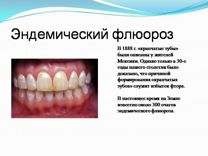 Зубная паста с фтором вредна для здоровья и подавляет интуицию!