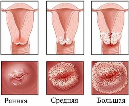 Эрозия шейки матки — симптомы и причины женского недуга