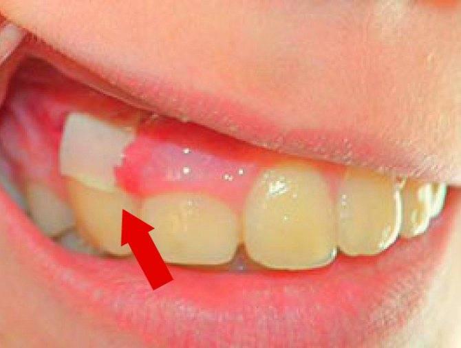 Что делать при оголении надкостницы, если после удаления зуба из десны торчит кость?