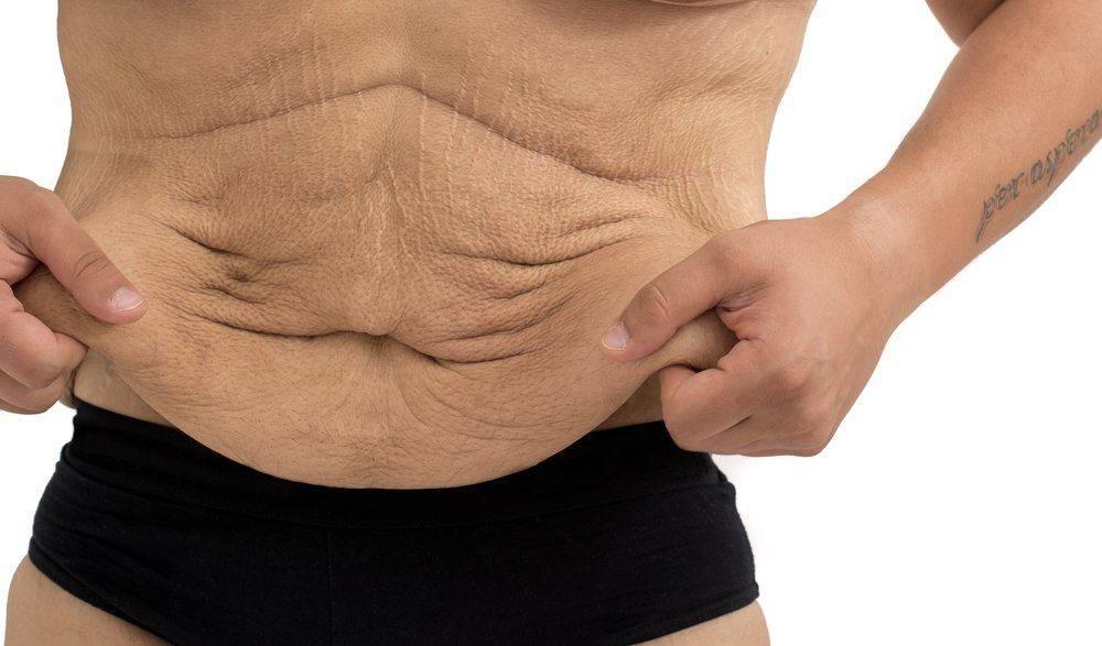 Подтянуть кожу на животе в домашних условиях – сложно, но можно