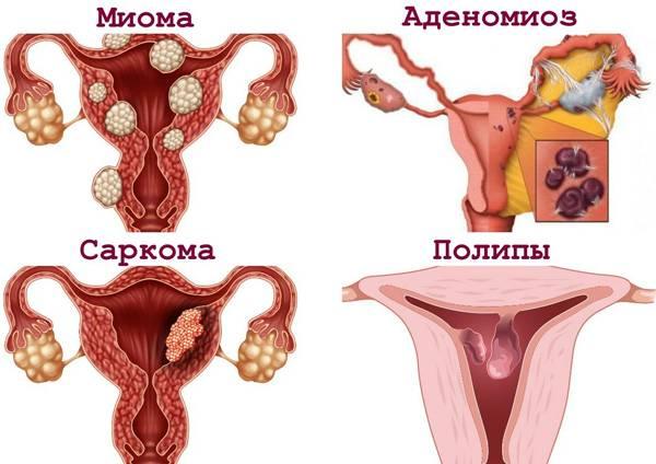 Чем полип отличается от миомы