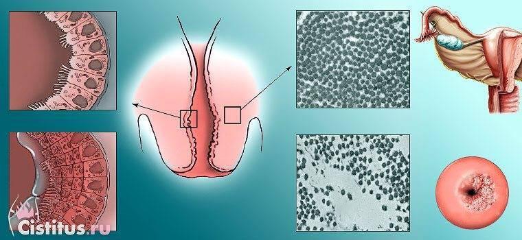 Паракератоз плоского эпителия шейки матки