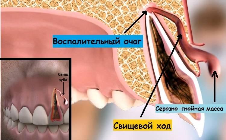 После удаления зуба мудрости болит ухо