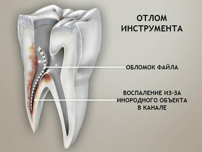 Зуб без нерва реагирует на горячее