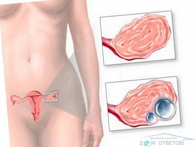 Возможна ли беременность при дисфункции яичников