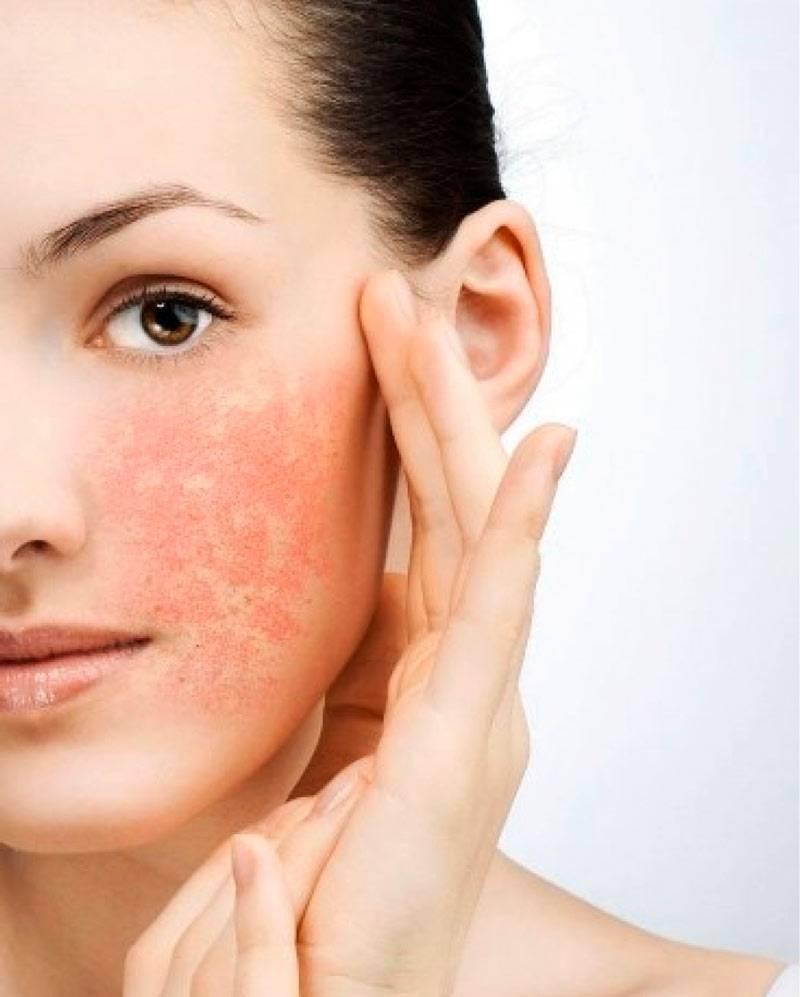 Почему с возрастом кожа теряет влагу и становится сухой? действенные способы поддержания водного баланса и увлажнения кожи лица в домашних условиях