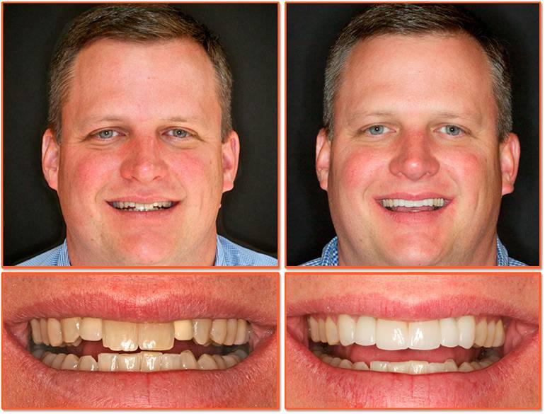 Можно ли поставить на кривые передние зубы виниры — фото до и после исправления зубного ряда