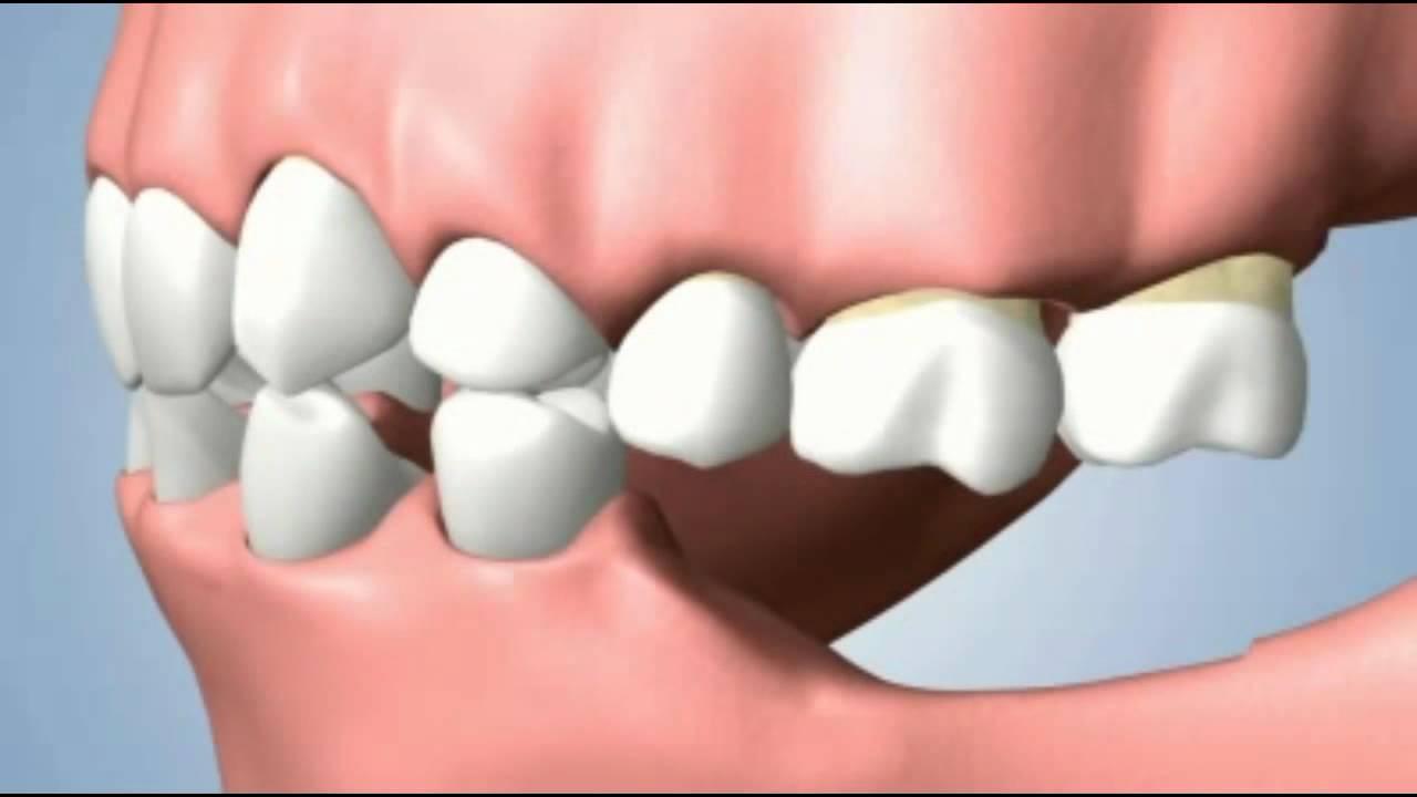 Чем опасна потеря зуба?
