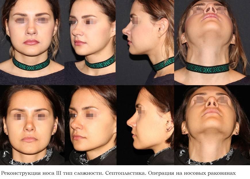 Операция лазерная септопластика перегородки носа — о самом главном