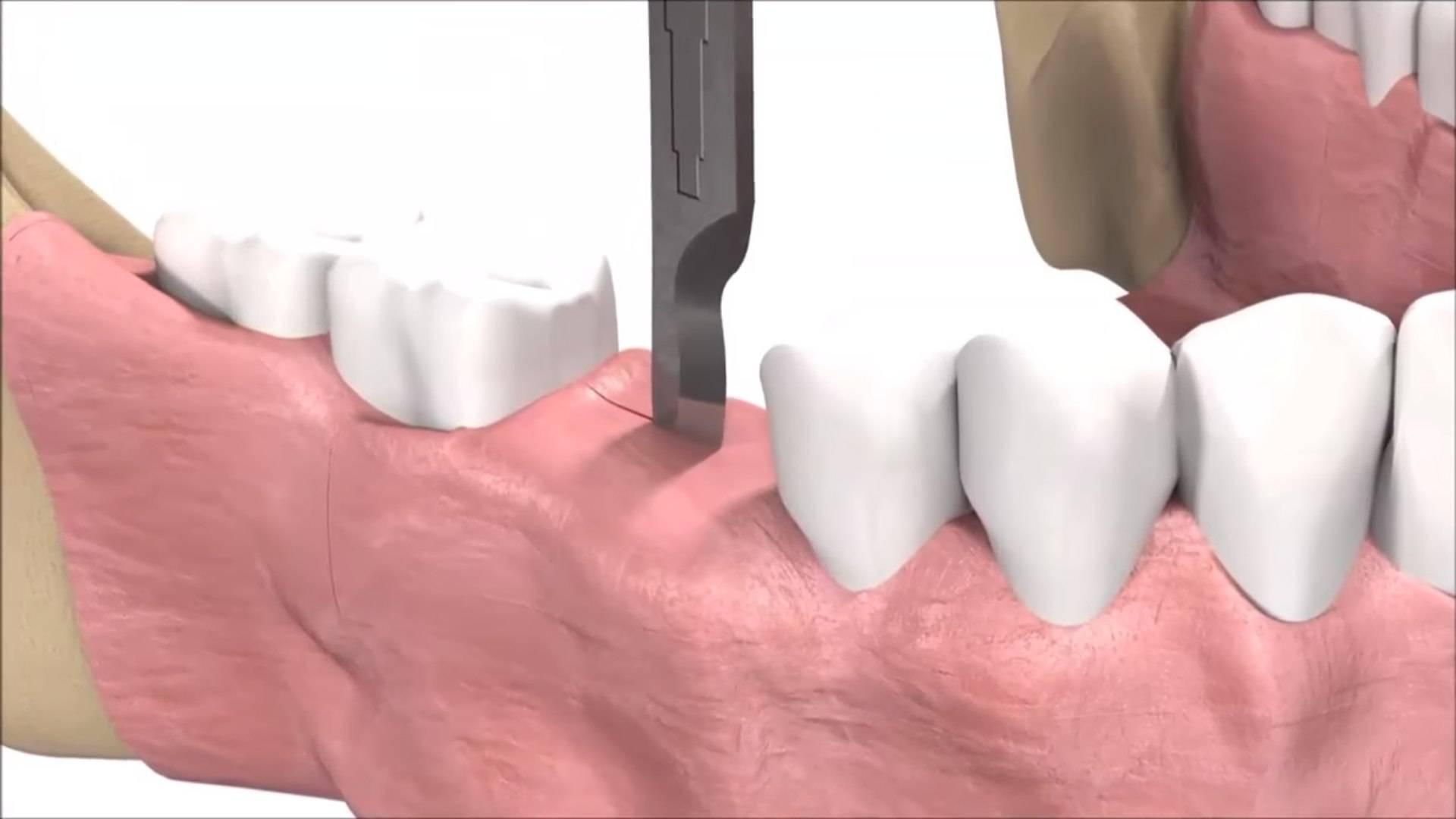 Современные технологии и методы имплантации зубов