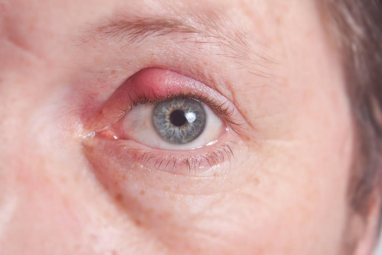Причины воспаления нижнего века глаз и методы лечения