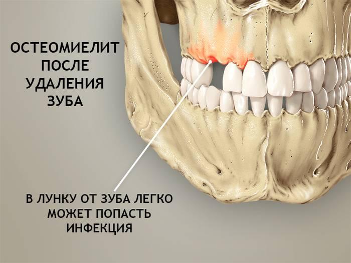 Болит горло после удаления зуба мудрости: причины, врачебное наблюдение и лечение