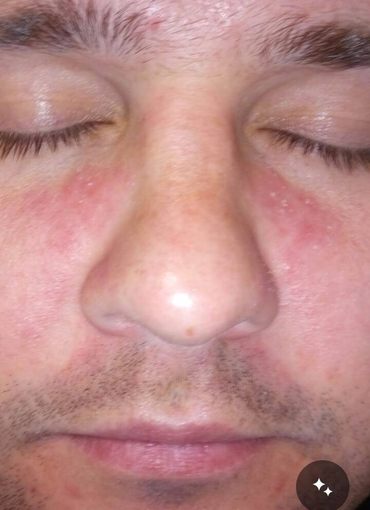 Красное пятно на носу лечение