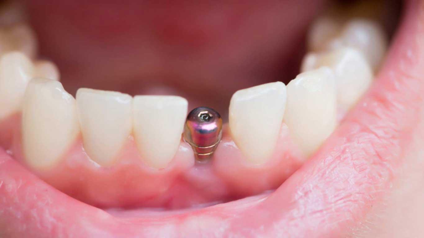 Сколько держится имплант зуба