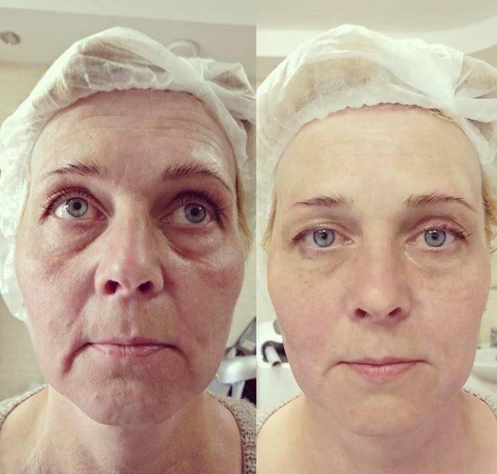 Как омолодить лицо после 50
