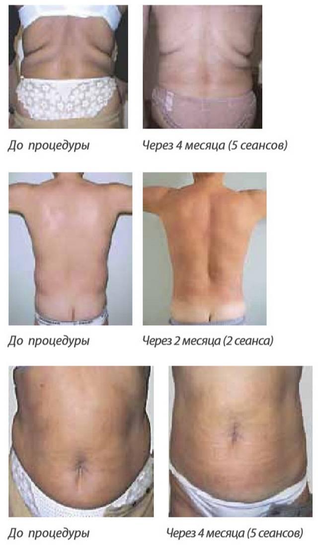 Отзывы о липолитиках для похудения