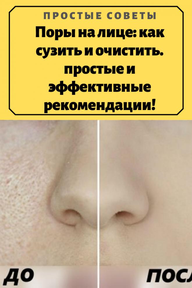 Пористое лицо— что делать?