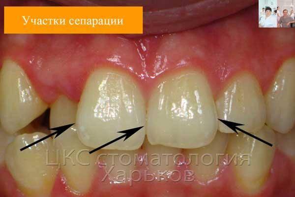 Что такое сепарация зубов