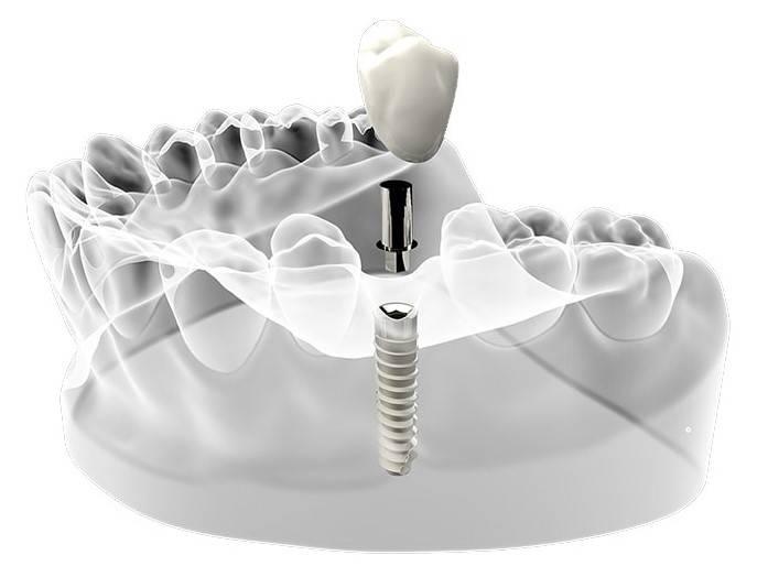 Линейка продукции зубных имплантов осстем, их преимущества и гарантии качества