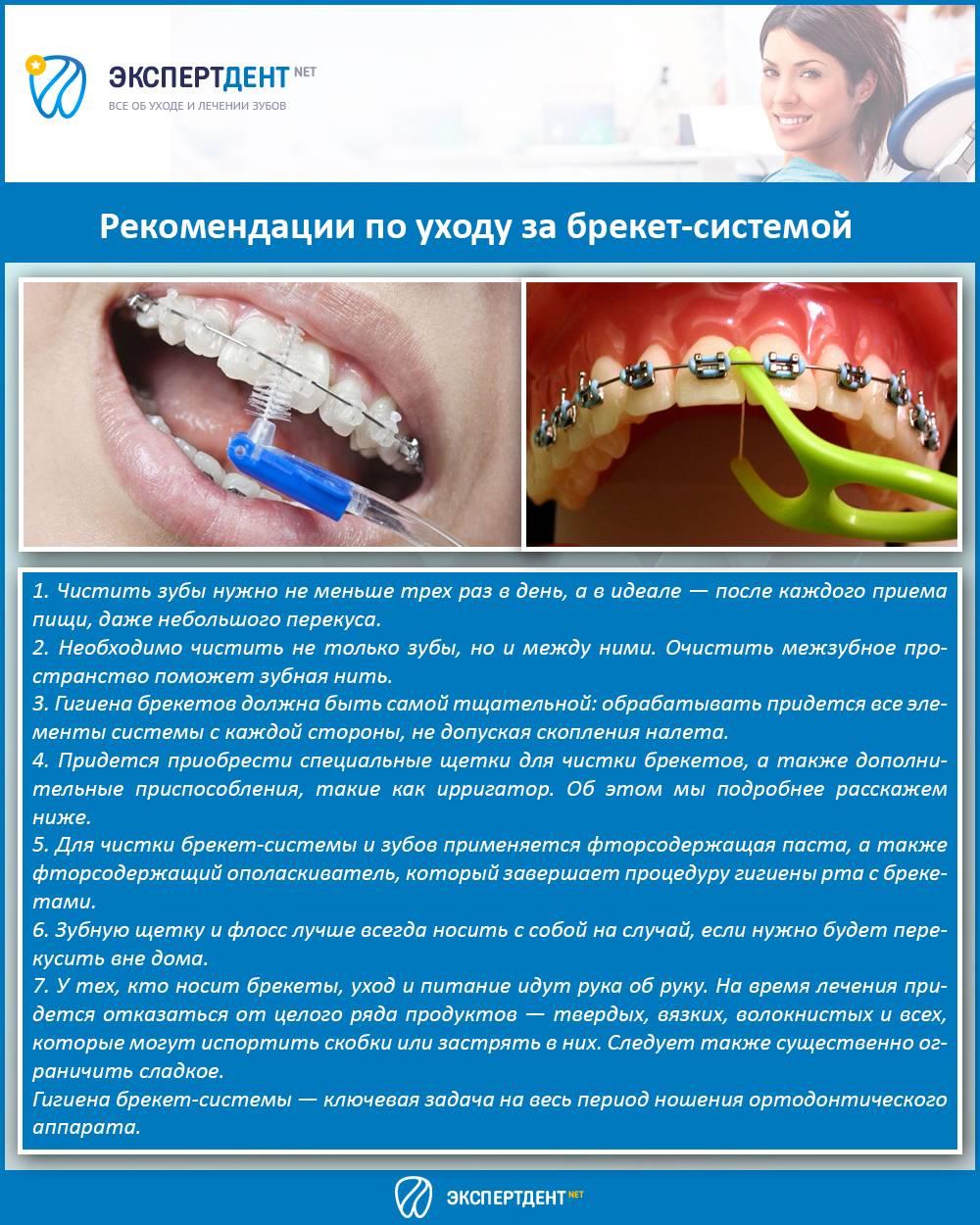 Гигиена во время ортодонтического лечения