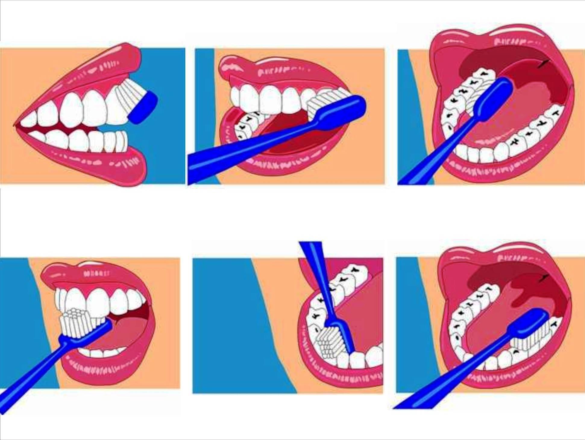 Правильный уход за зубами: правила и рекомендации стоматологов