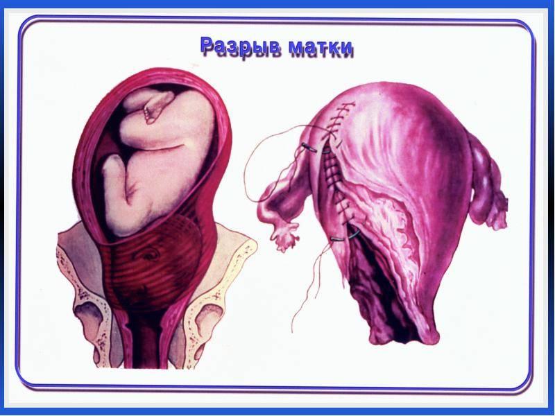Причины и последствия разрыва шейки матки при родах