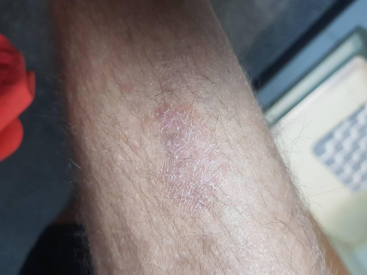 Шелушащиеся пятна на коже