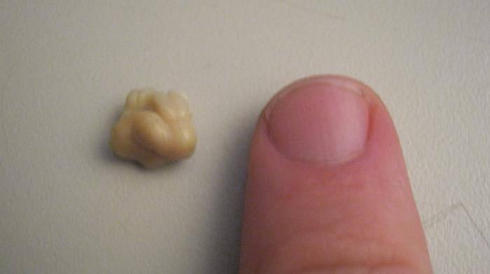 Белый налет в горле на миндалинах и гландах: причины, как лечить