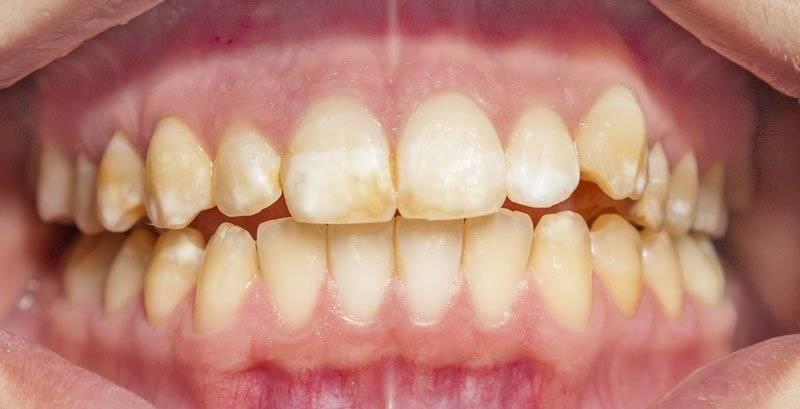 Флюороз зубов у детей и взрослых: симптомы, лечение, методы отбеливания эмали, профилактика