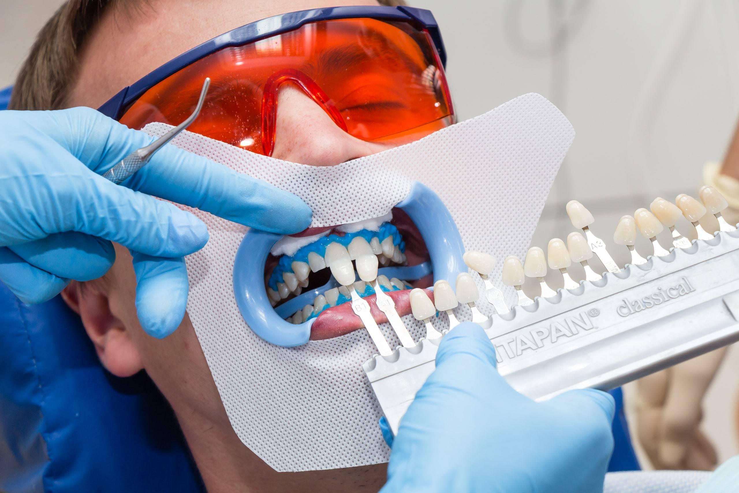 Что нельзя делать после отбеливания зубов