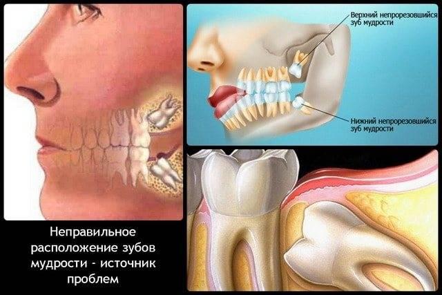 Прорезывание зубов мудрости