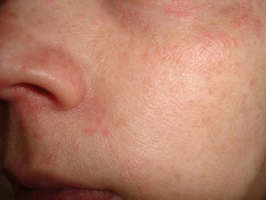 Сыпь на лице у взрослого