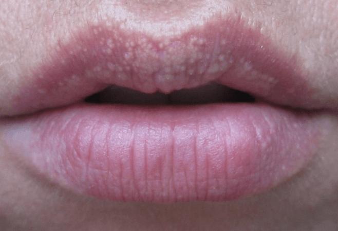 Белые точки или маленькие жировики под кожей на губах: что это такое и как избавиться от пятен?